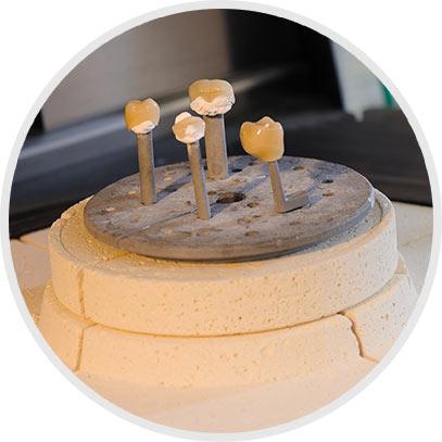 6. Brennen der Bemalung und individuellen Gestaltung im Keramikofen